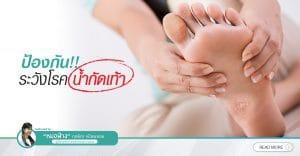 ป้องกัน!! ระวังโรคน้ำกัดเท้า